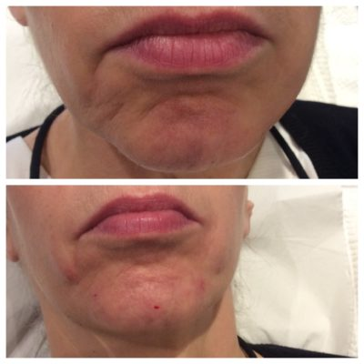 before and after of dermal fillers