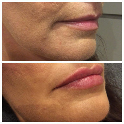 before and after of lip fillers